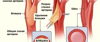 Удаление бляшки из сонной артерии