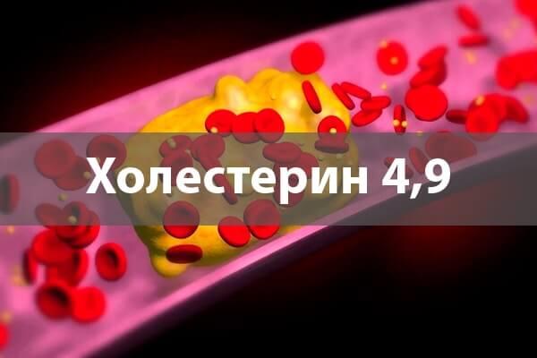 Холестерин 4,9