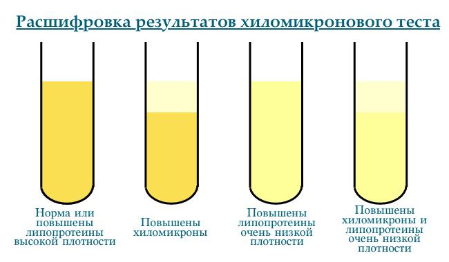 Анализ на липопротеин