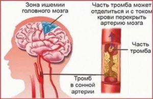 Ишемический атеросклероз
