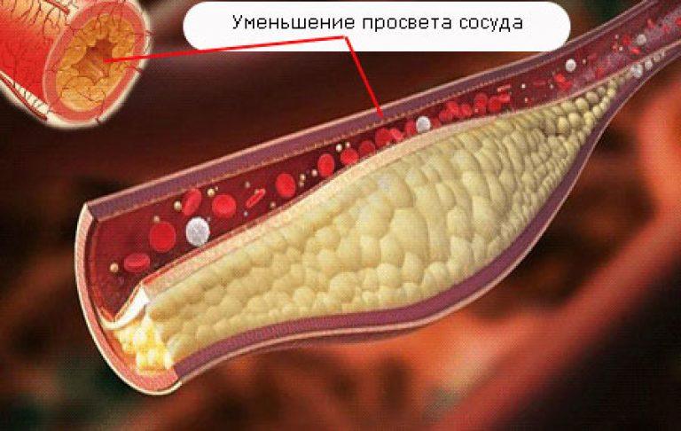 Патогенез и этиология атеросклероза сосудов