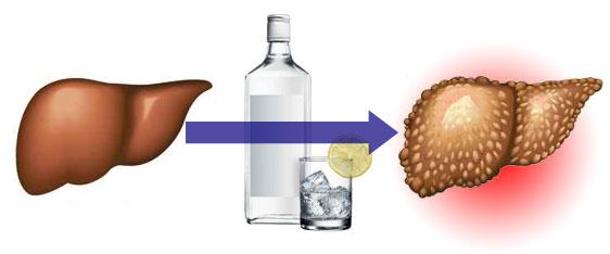Алкоголь расщепляется печенью