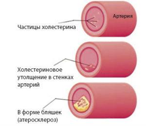 Причины патологического синдрома