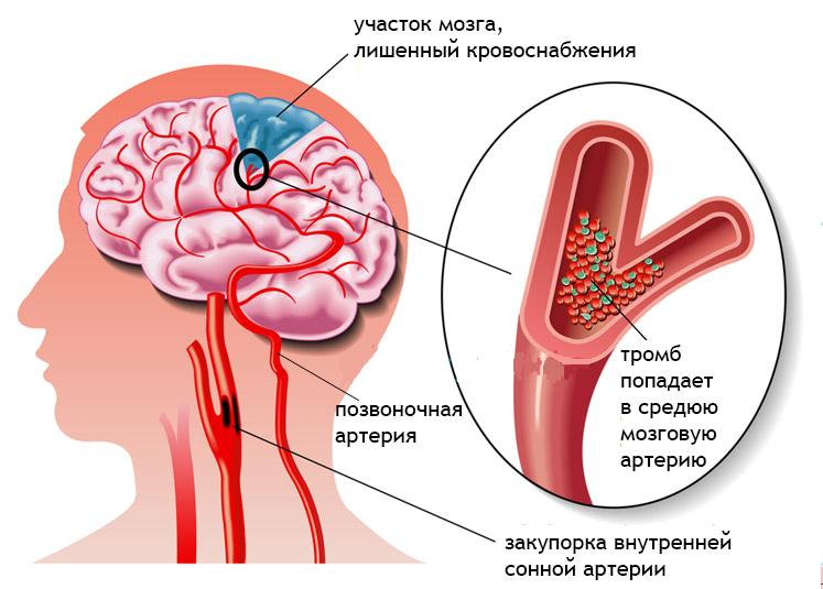 Риск образования инсульта