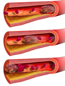 Фибраты активно тормозят свертываемость крови