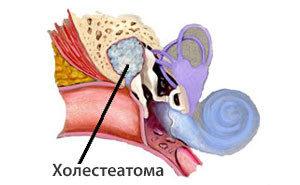 Холестеатома уха