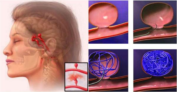 Опасность игнорирования симптомов атеросклероза