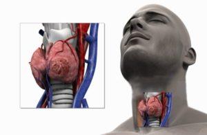 Проблема в работе щитовидной железы