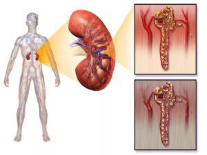 При нефропатии у диабетиков