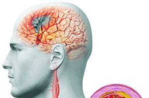 Сужение сосудистых стенок головного мозга