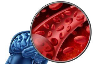 Помогают организму бороться с атеросклерозом