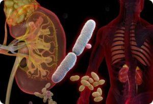 Инфекции мочеполовой системы.