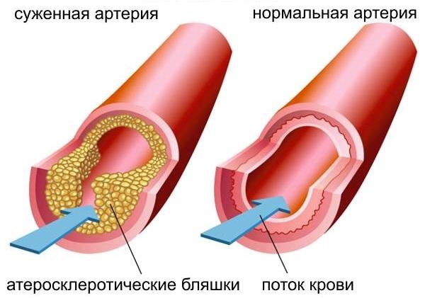 Холестерин ЛПВП в крови