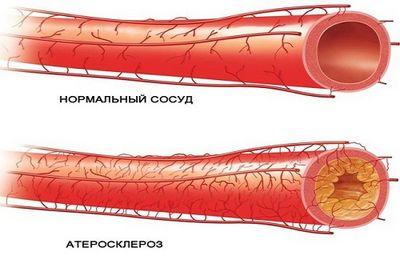 Стенозирующий атеросклероз БЦА
