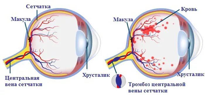 Изменения артериовенозных перекрёстков