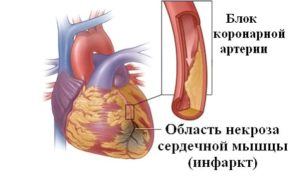 Инфаркт миокарды