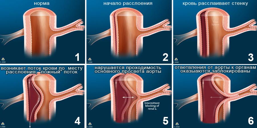 Осложнения атеросклероза аорты
