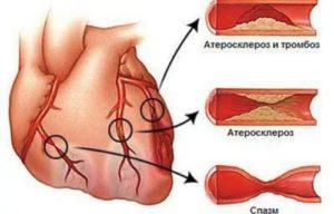 Мультифокальный атеросклероз