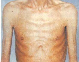 Уменьшение веса тела