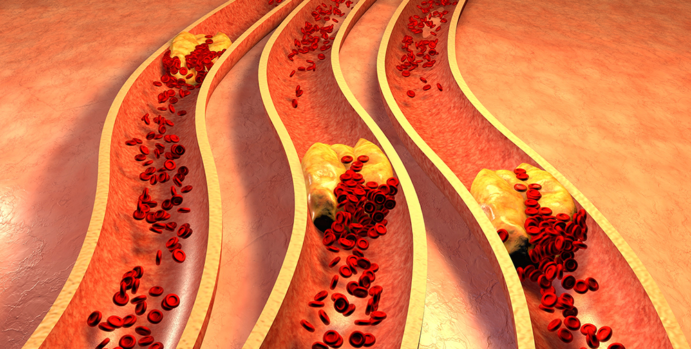 Окклюзия — закупорка сосудов и артерий