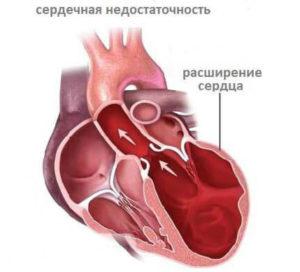 Развивающаяся сердечная недостаточность