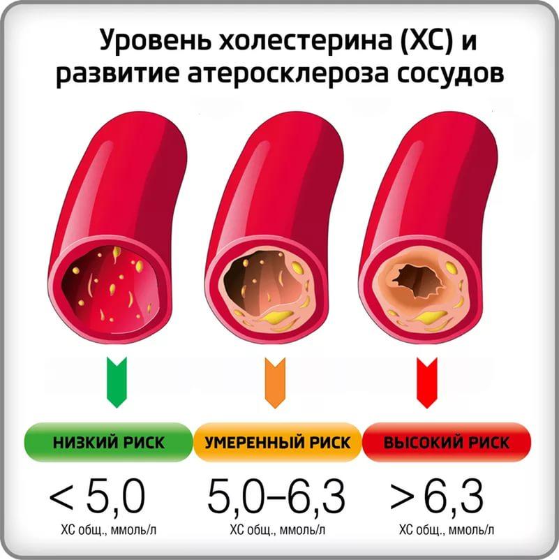 Значение допустимого уровня холестерина