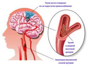 Атеросклероз магистральных артерий головного мозга