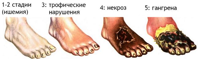 Стадии атеросклероза облитерирующего типа