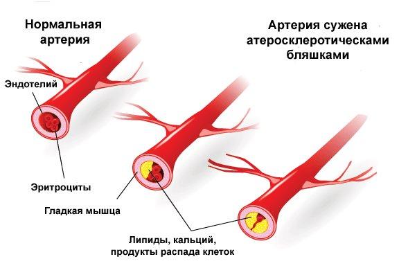 Атеросклероз полового члена