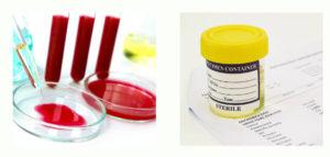 Лабораторный биохимический анализ