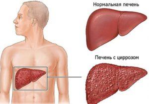 Тяжелые формы патологий печени