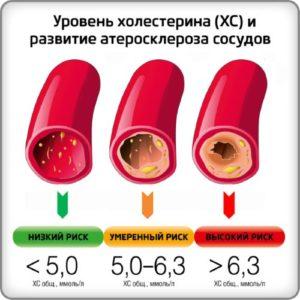 Уровень ЛПНП в крови
