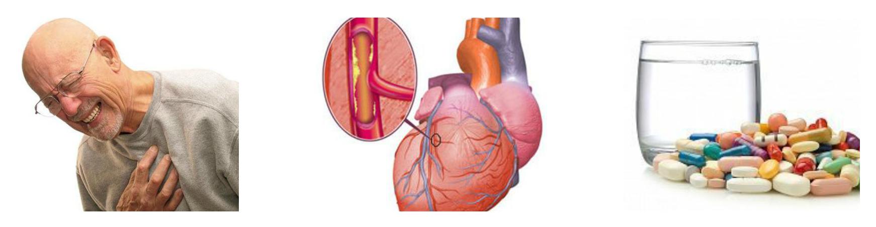 Ишемической болезнь сердца и статины