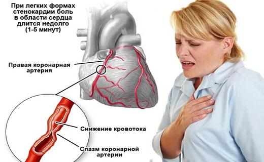 Ухудшение стенокардии
