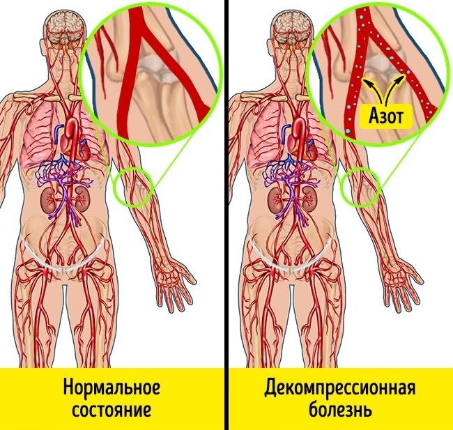 Появление кесонной болезни
