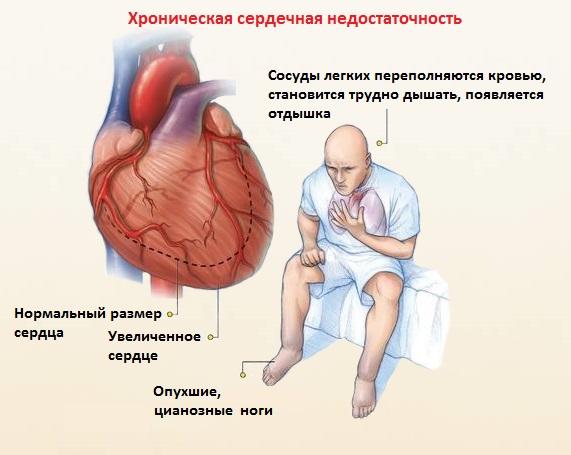 Недостаточность сердечной функции