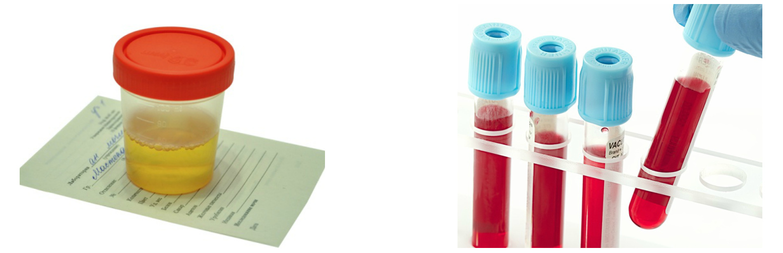 Анализ мочи, анализ крови