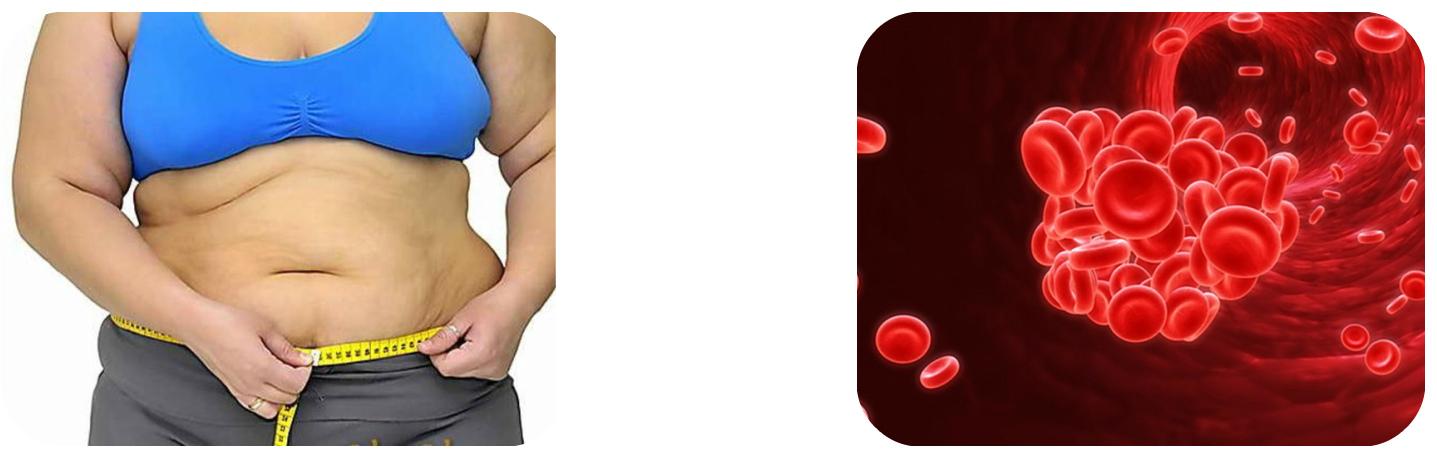 Вязкость крови и ожирение