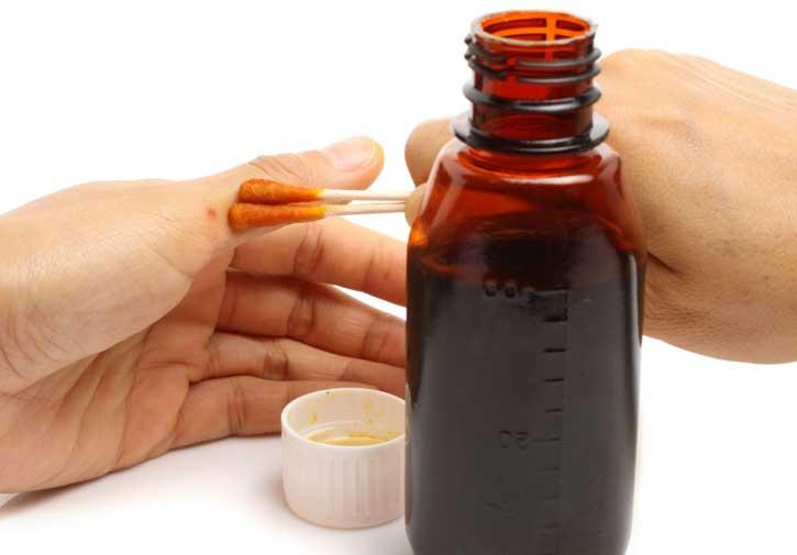 Терапия йодистыми настойками