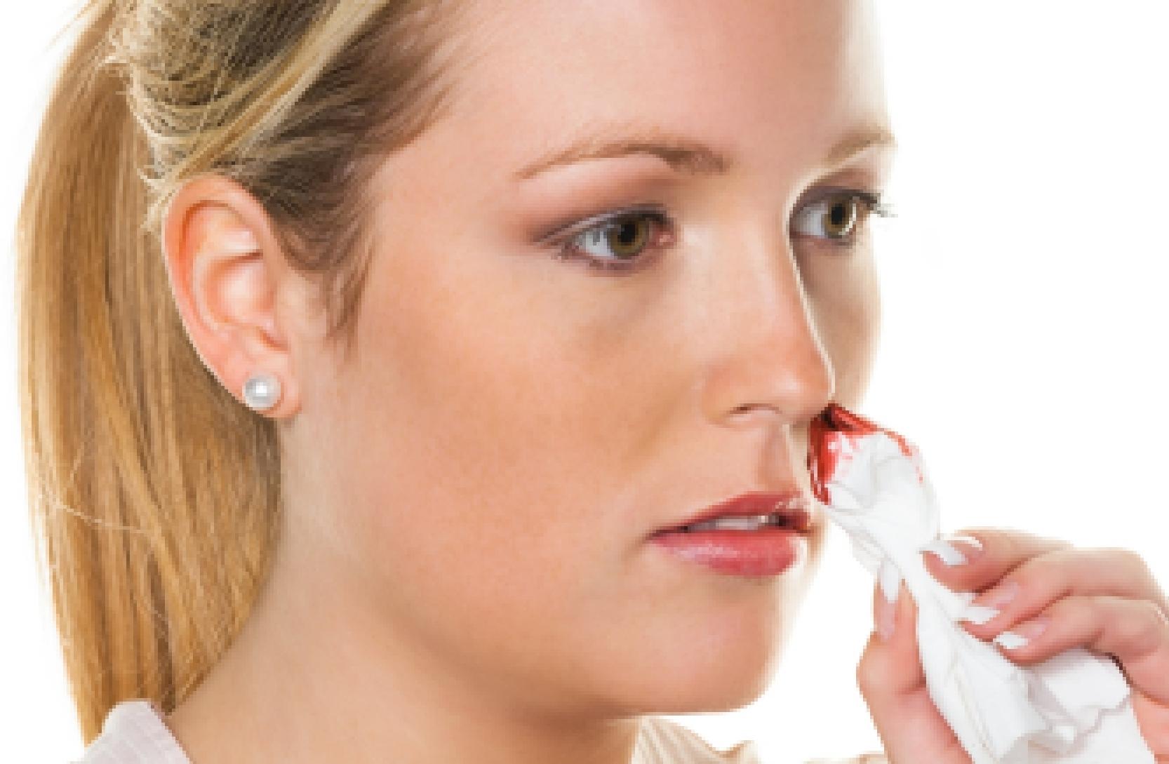 Кровь из носовых ходов
