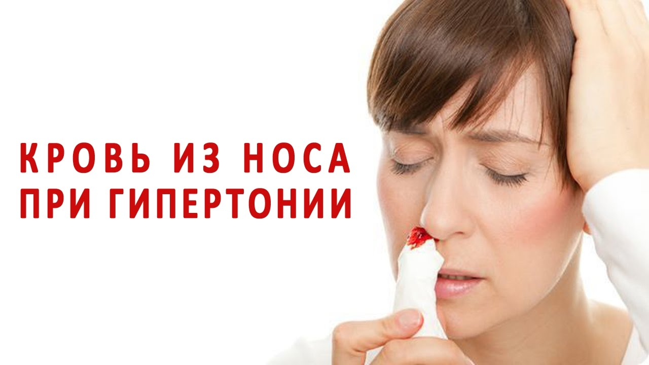 Кровь идет из носа при давлении регулярно