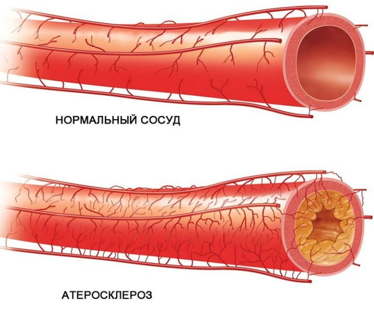 После сужения просвета русла сосуда, затрудняющего транспорт крови