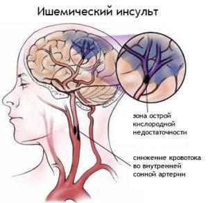 Отек мозга при ишемическом инсульте