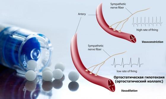 Не регистрируется ортостатический вариант гипотонии