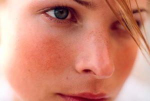 Покраснение кожных покровов