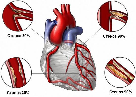 Спазм коронарных артерий