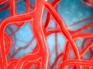 Чрезмерное растяжение крупных кровеносных магистралей