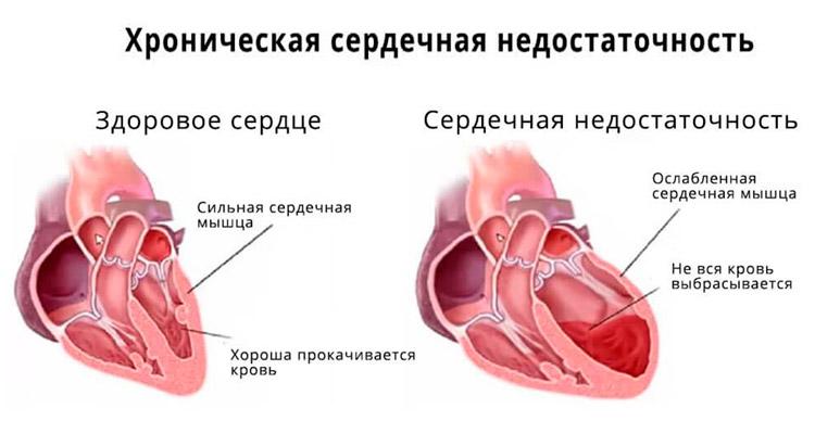 При хронической сердечной недостаточности
