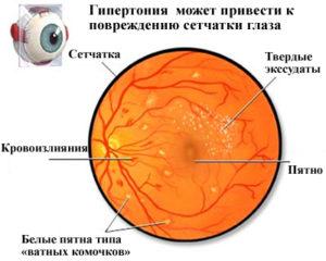 Поражение глазного дна