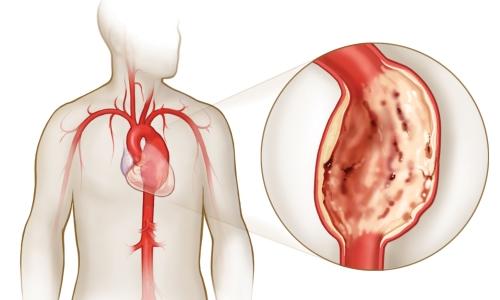Перепады влияния потока крови на сосуды грудной